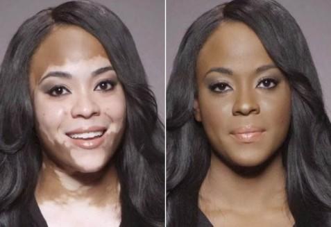 Resultado de imagem para como maquiar pele com vitiligo